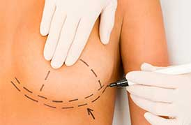Chirurgie des seins et augmentation mammaire